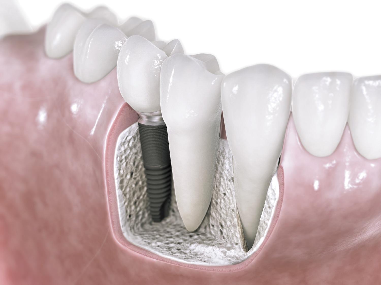 implantes dentales en carabanchel