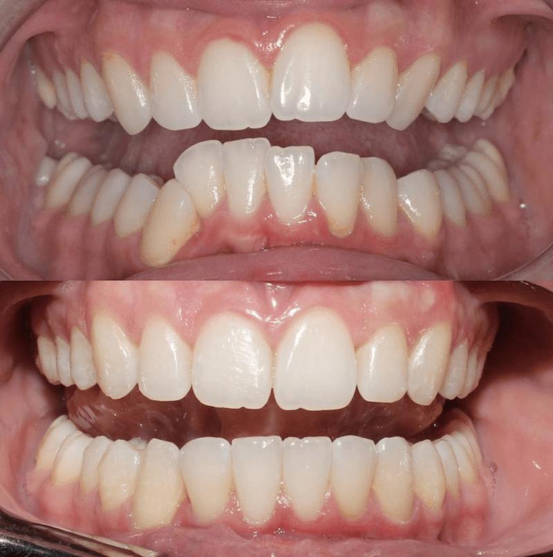 El Boom de la Ortodoncia en plena pandemia